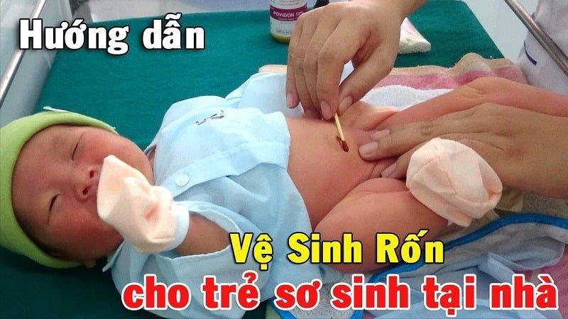 Hướng dẫn cách vệ sinh rốn cho trẻ sơ sinh