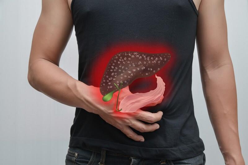 Gan nhiễm mỡ: khái niệm, nguyên nhân, cách phòng trừ và chữa bệnh