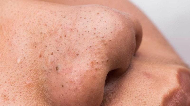 Mụn đầu đen là gì? Nguyên nhân và cách chữa trị triệt để
