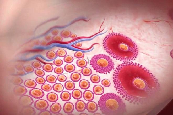 Rụng trứng là một hiện tượng xảy ra hàng tháng ở phụ nữ