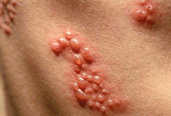 virut Herpes là gì