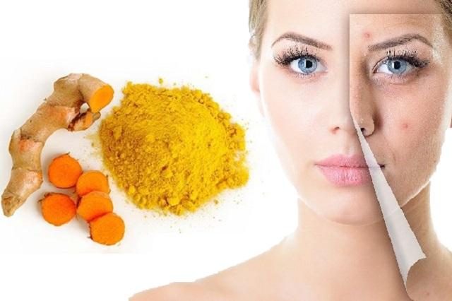 Cách làm mặt nạ dưỡng da bằng tinh bột nghệ trị nám